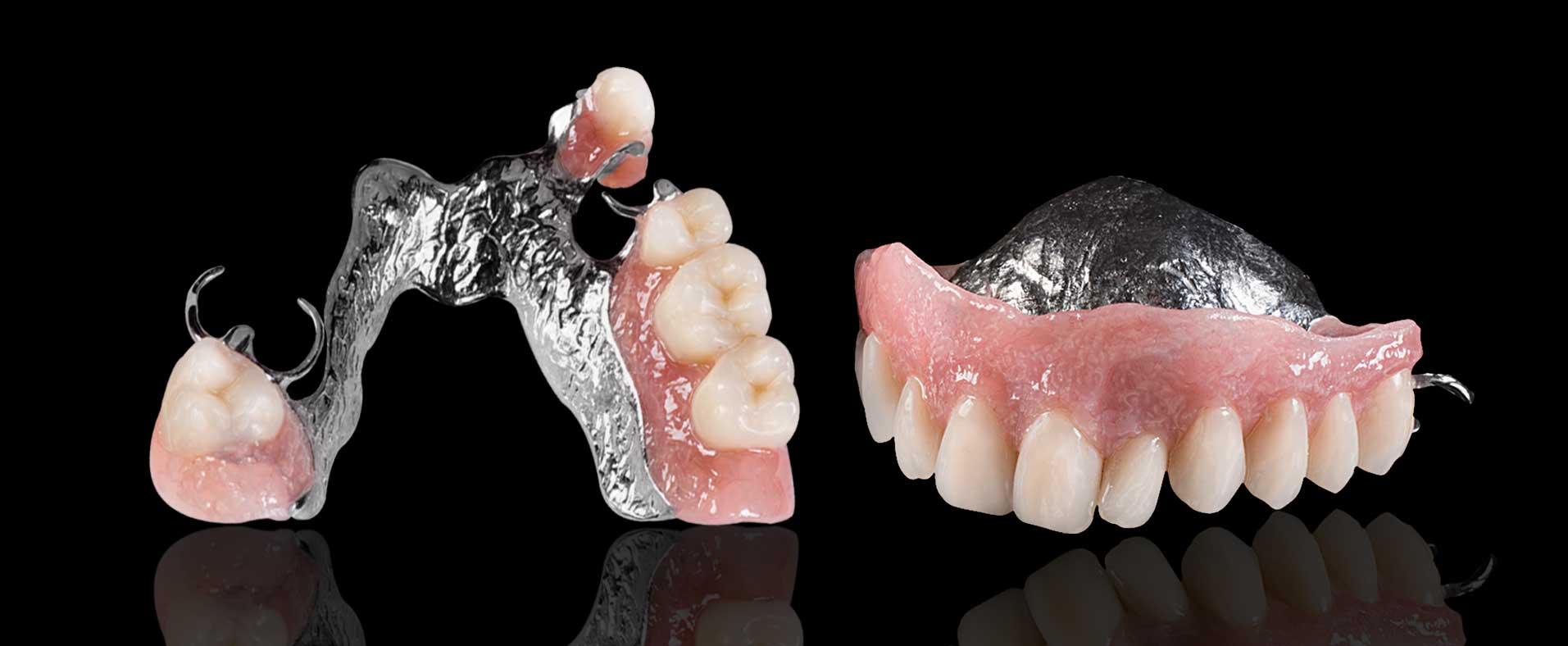 Протез зуба в домашних условиях 357